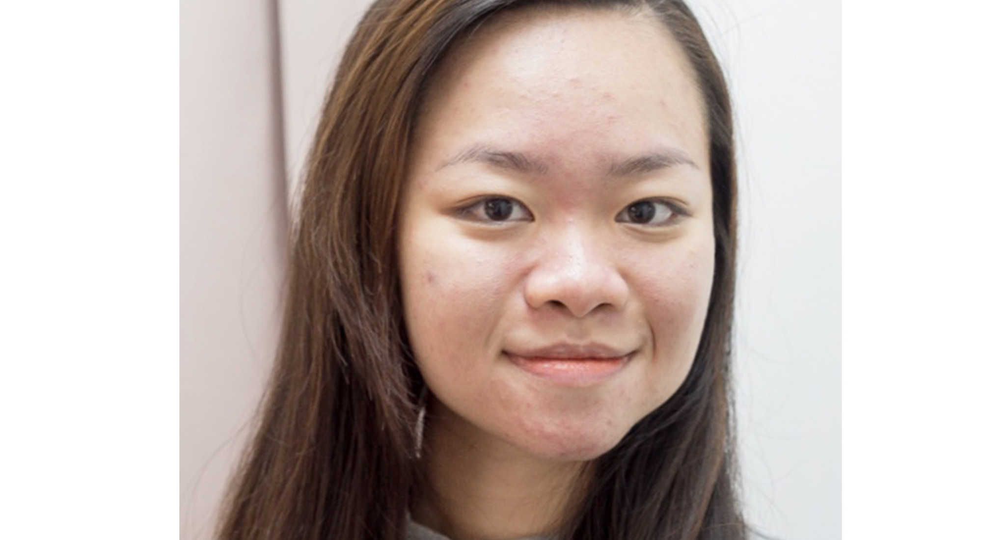 Pimples Cleared After 2 Sessions of Facial at Apple Queen Beauty