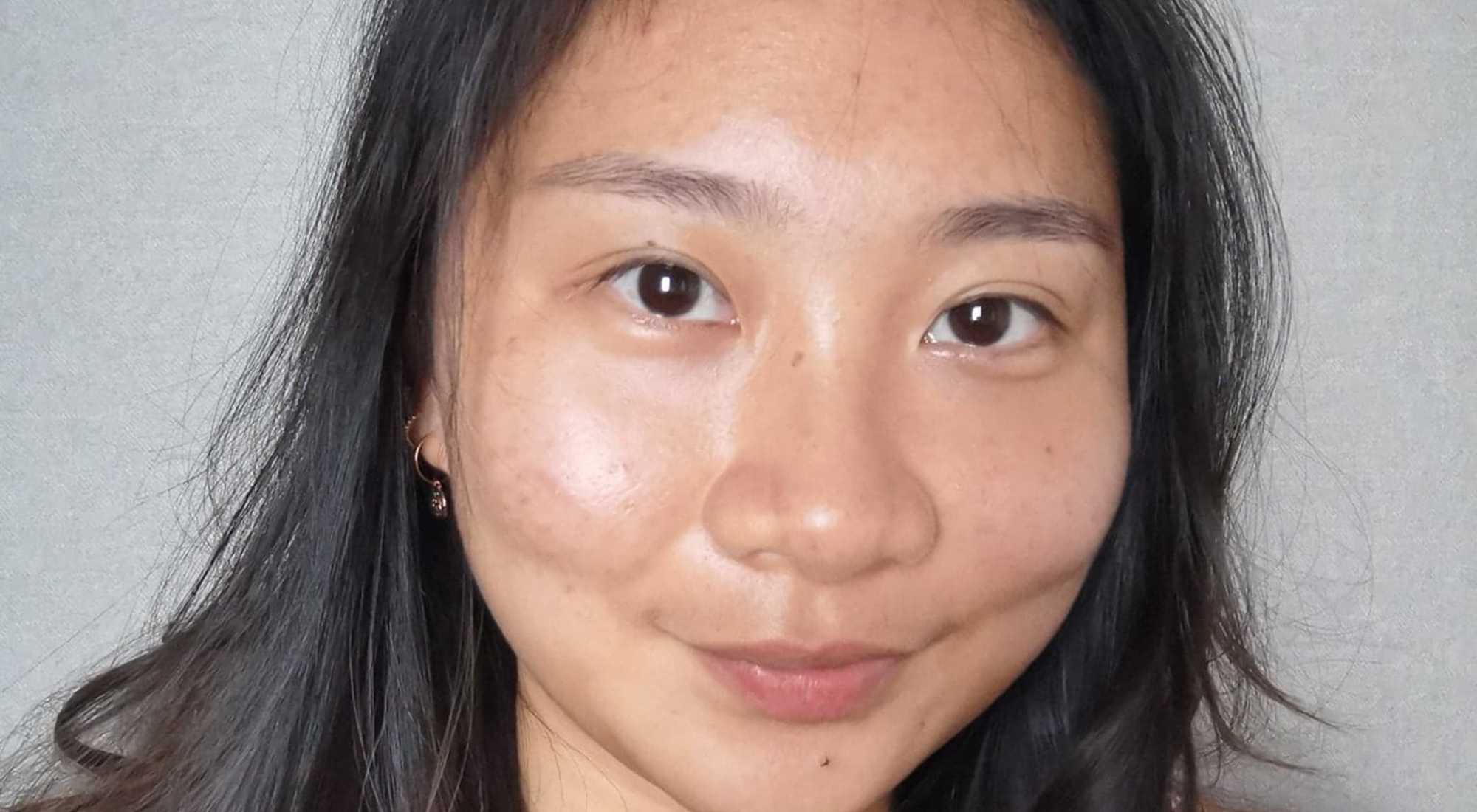 Improvement After 2 Sessions of Acne Facial Treatment at Apple Queen Beauty