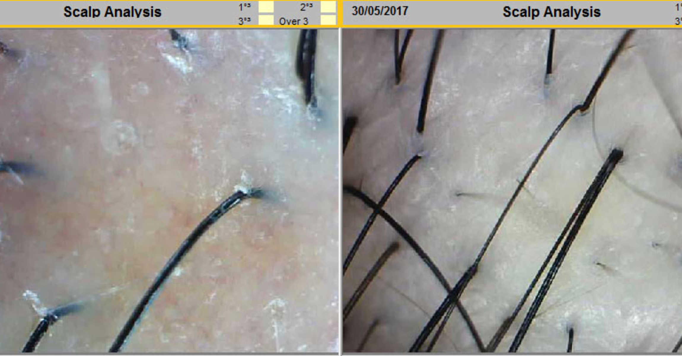 Before and After Scalp Treatment for Thinning Hair at Follicle Salon