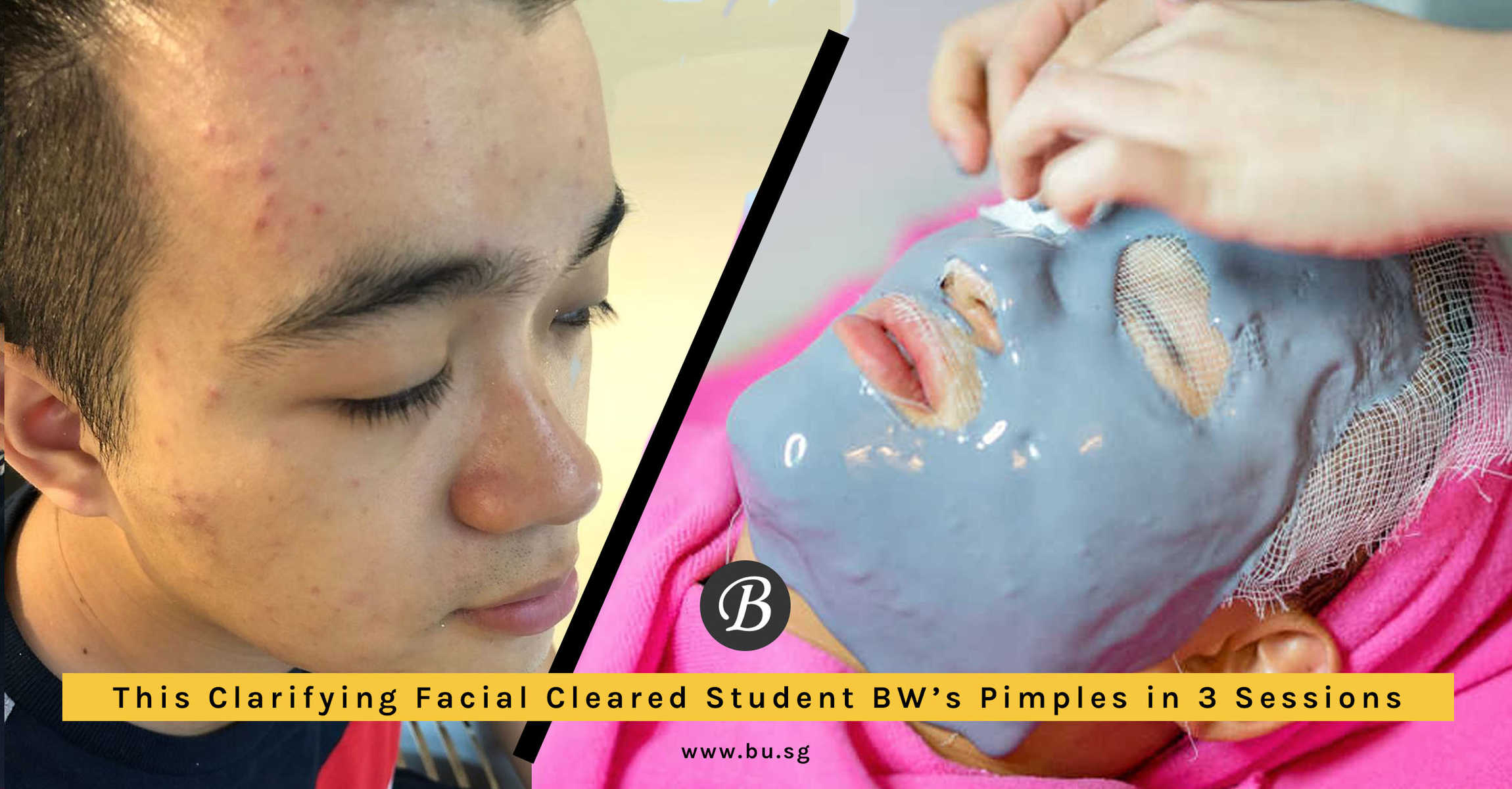 Student BW Sees an Improvement in Acne After Going for Clarifying Facial at Apple Queen Beauty