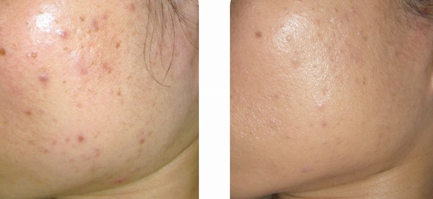 NUA_Acne_before after