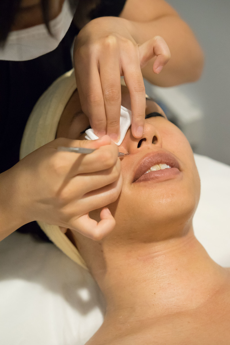 Extraction of Blackheads... Painless!