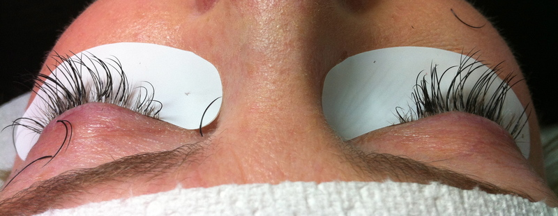 Bad Eyelash Extension with Eye Infection