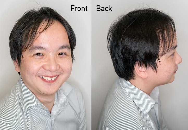 before haircut and scalp treatment at Picasso