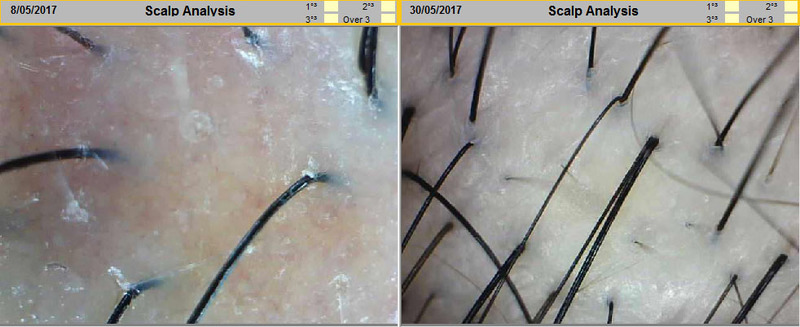 Before and After Scalp Treatment at Follicle Salon