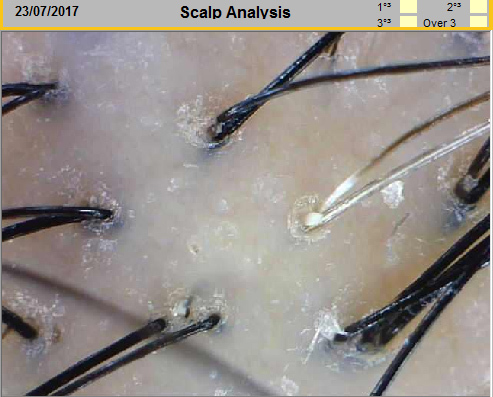 Scalp Analysis Before Treatment For Hair Loss at Follicle Salon