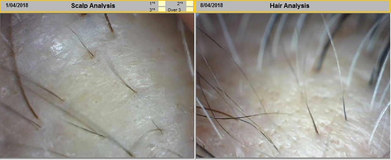 Scalp Scan of Before and After Cytokines Radiofrequency for Grey Hair at Follicle Salon