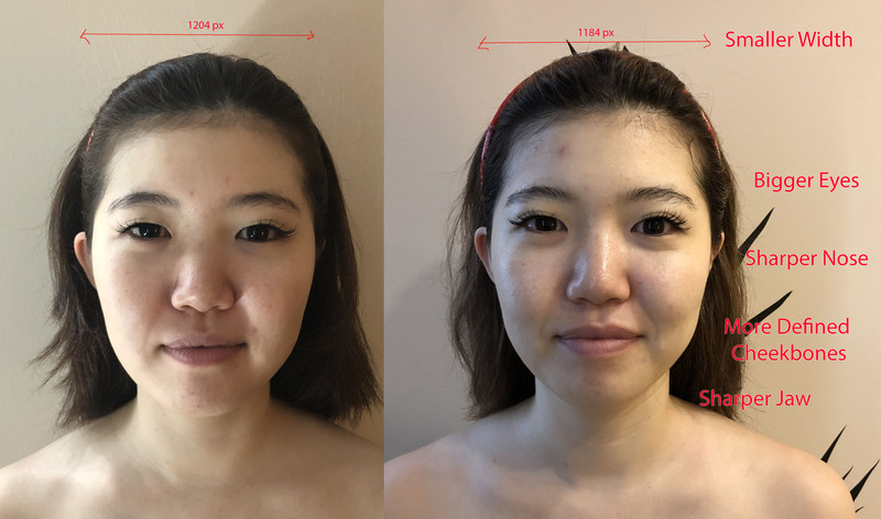 Tighter Skin After Small Face Correction