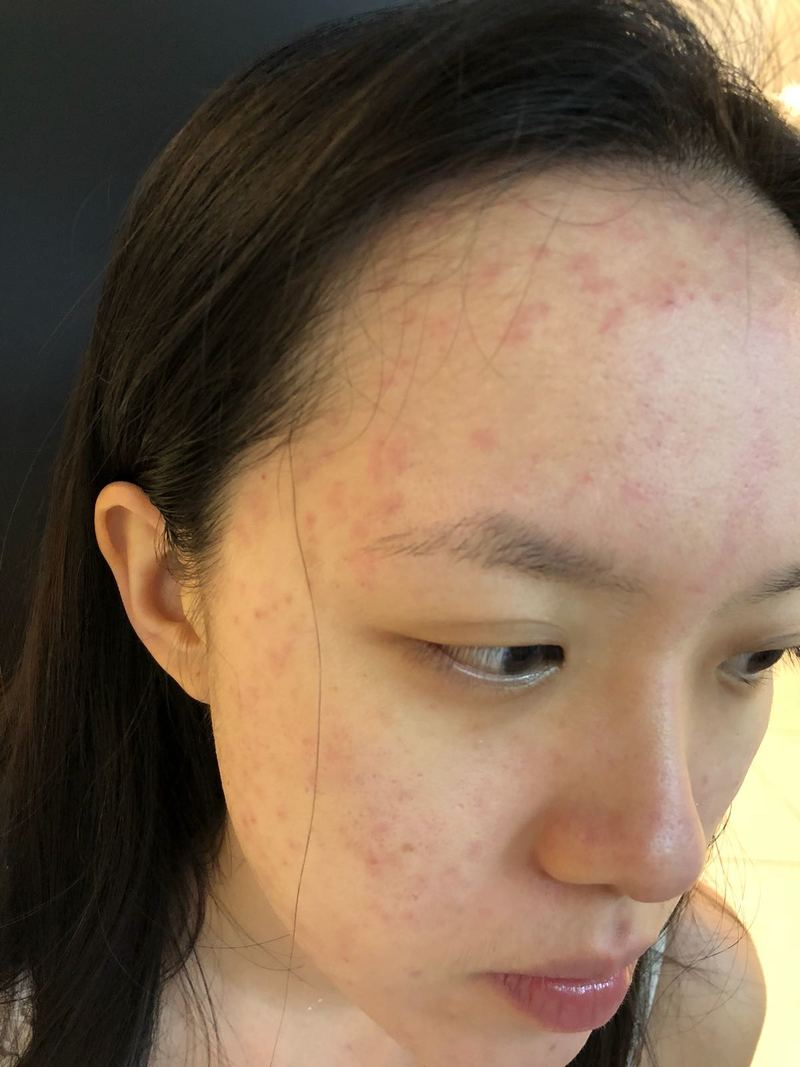 Acne Before Treatment at Apple Queen Beauty
