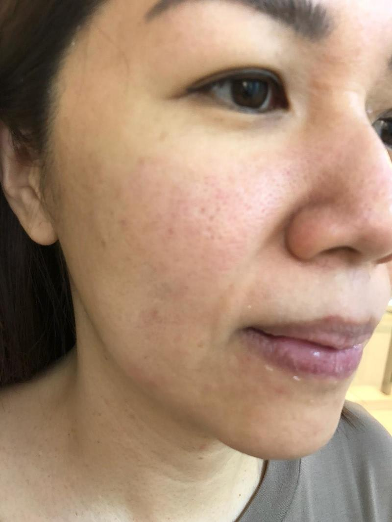 Pimple on Face Before Acne Treatment at Apple Queen Beauty