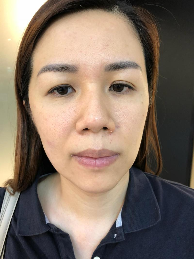 Pimples Cleared After EGF Facial Treatment at Apple Queen Beauty