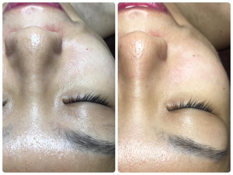 Before and After Facial Extraction at Bund Beauty on 5th Visit