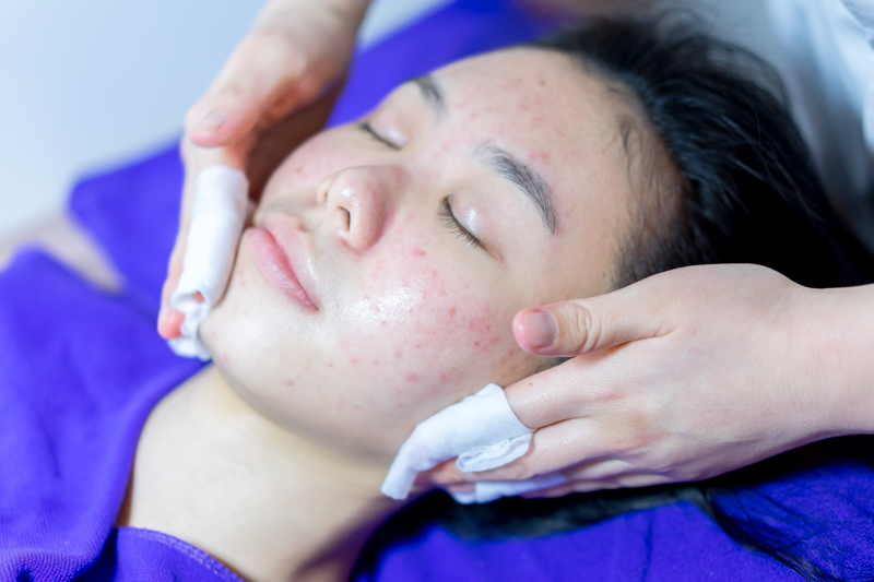 Final Cleansing After Facial Extraction at Apple Queen Beauty