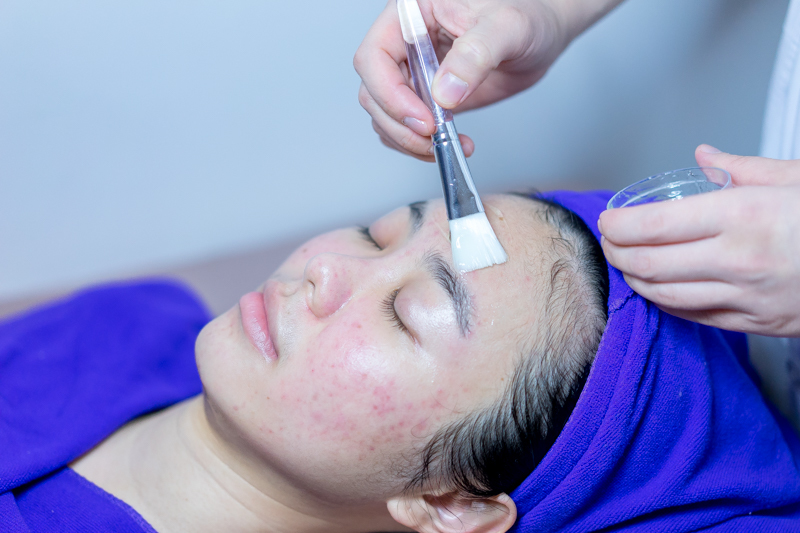 Application of Serum and Mask During Acne Treatment at Apple Queen Beauty
