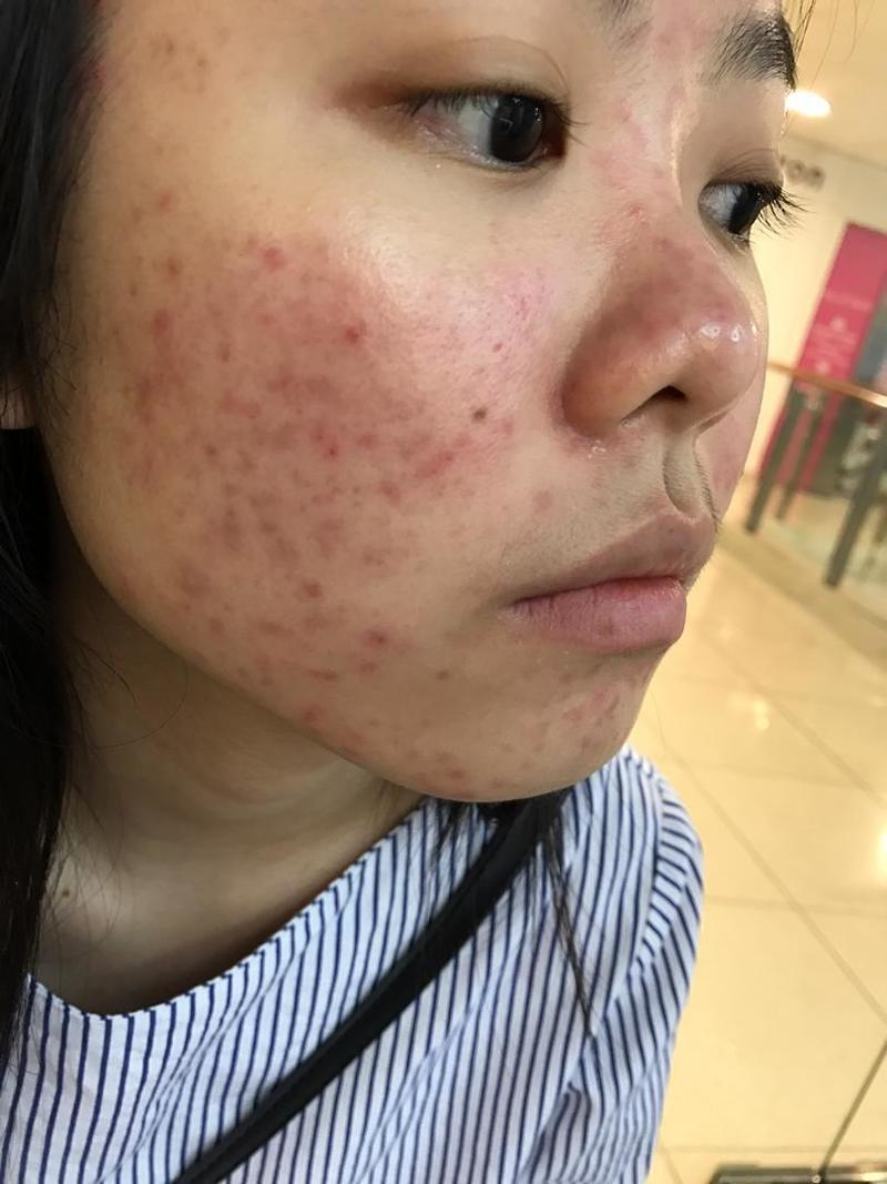 Severe Hormonal Pimples Before Acne Treatment at Apple Queen Beauty
