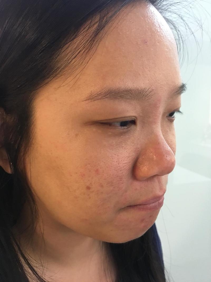 Improved Skin After Acne Treatment at Apple Queen Beauty