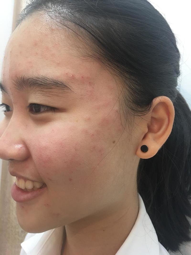 Before and After Acne Treatment at Apple Queen Beauty