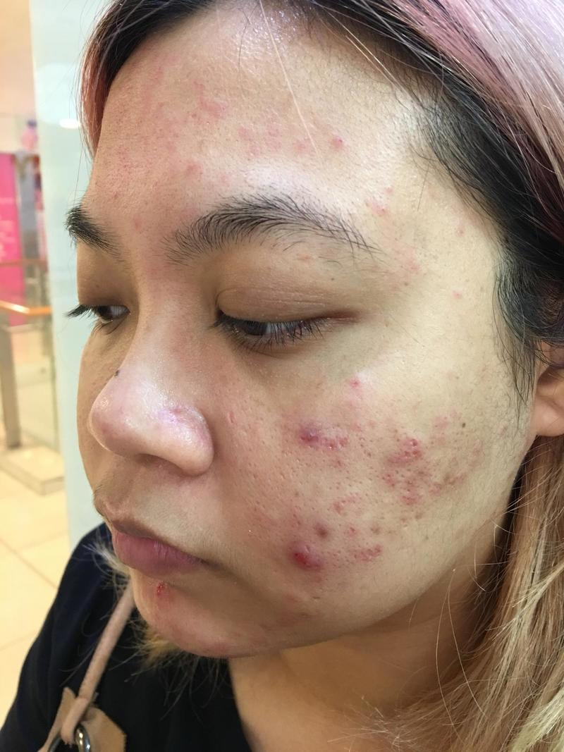 Before Acne Treatment at Apple Queen Beauty