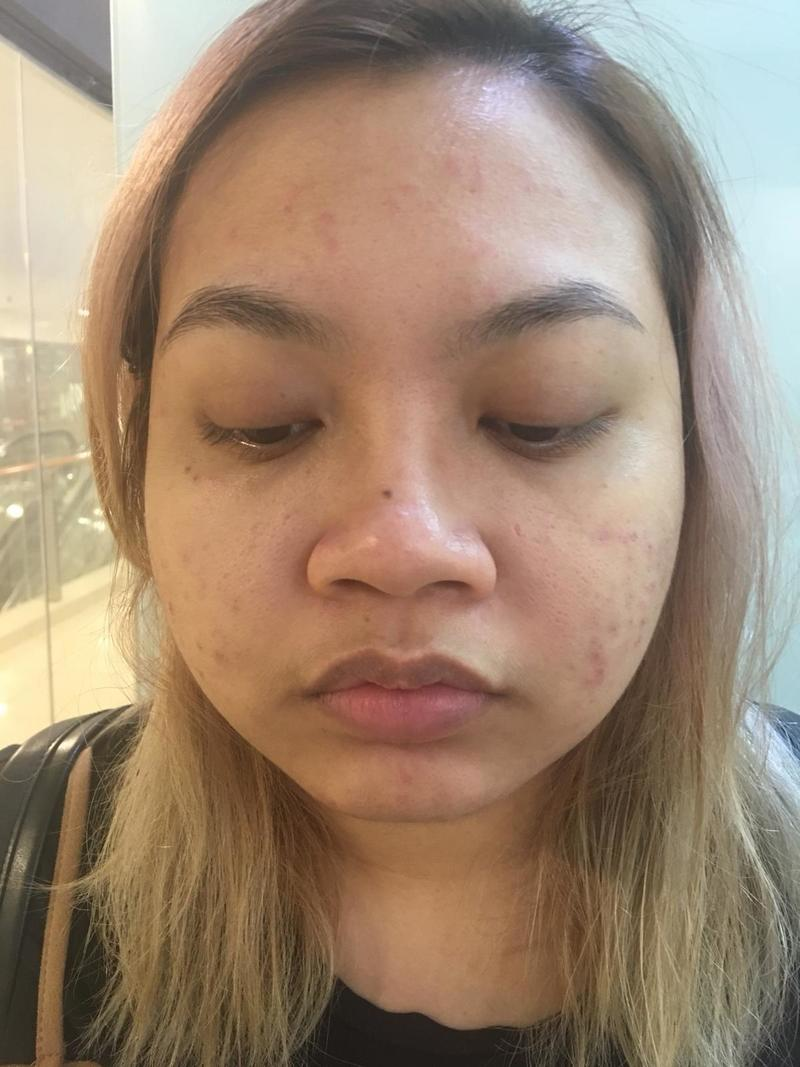 Pimple Cleared After Acne Treatment at Apple Queen Beauty