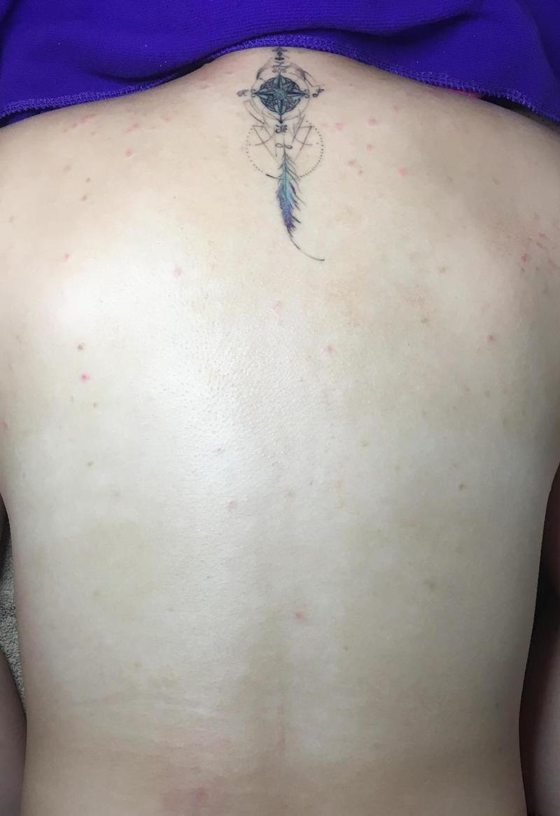 Back Acne Cleared After Treatment at Apple Queen Beauty