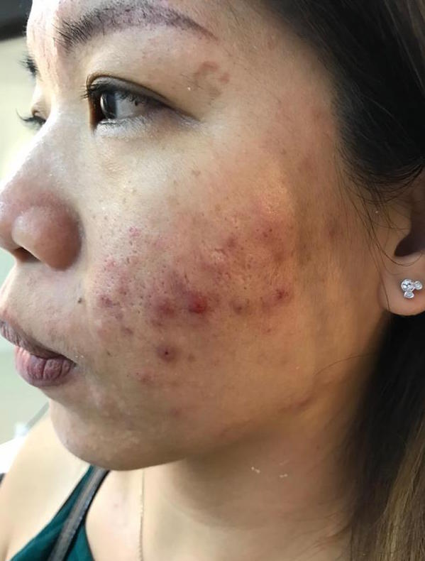 Rough, uneven and acne prone skin before treatment at Apple Queen Beauty