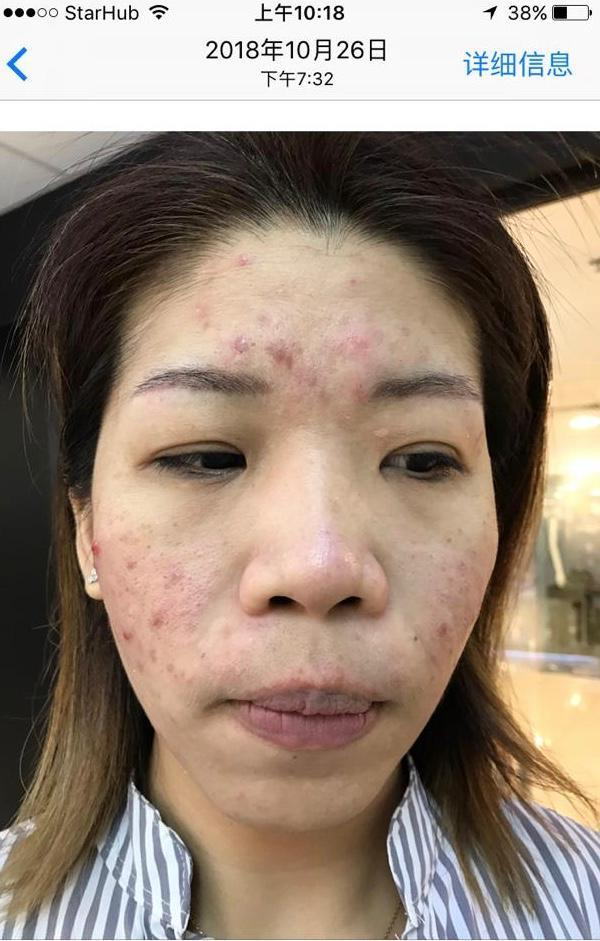 After 1 session of facial treatment at Apple Queen Beauty