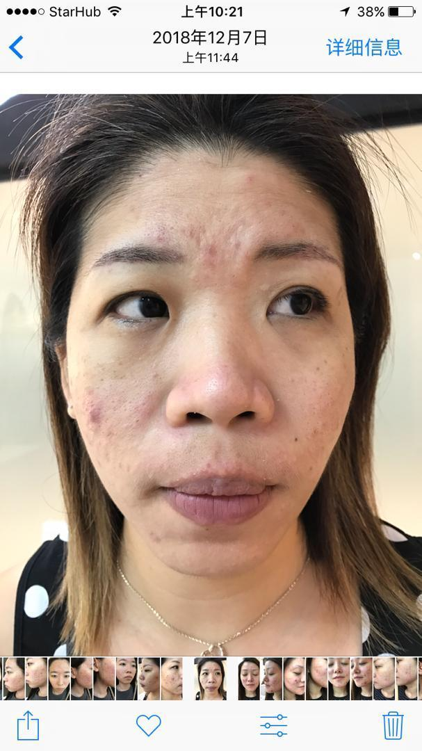 After 2 sessions of Facial Treatment at Apple Queen Beauty