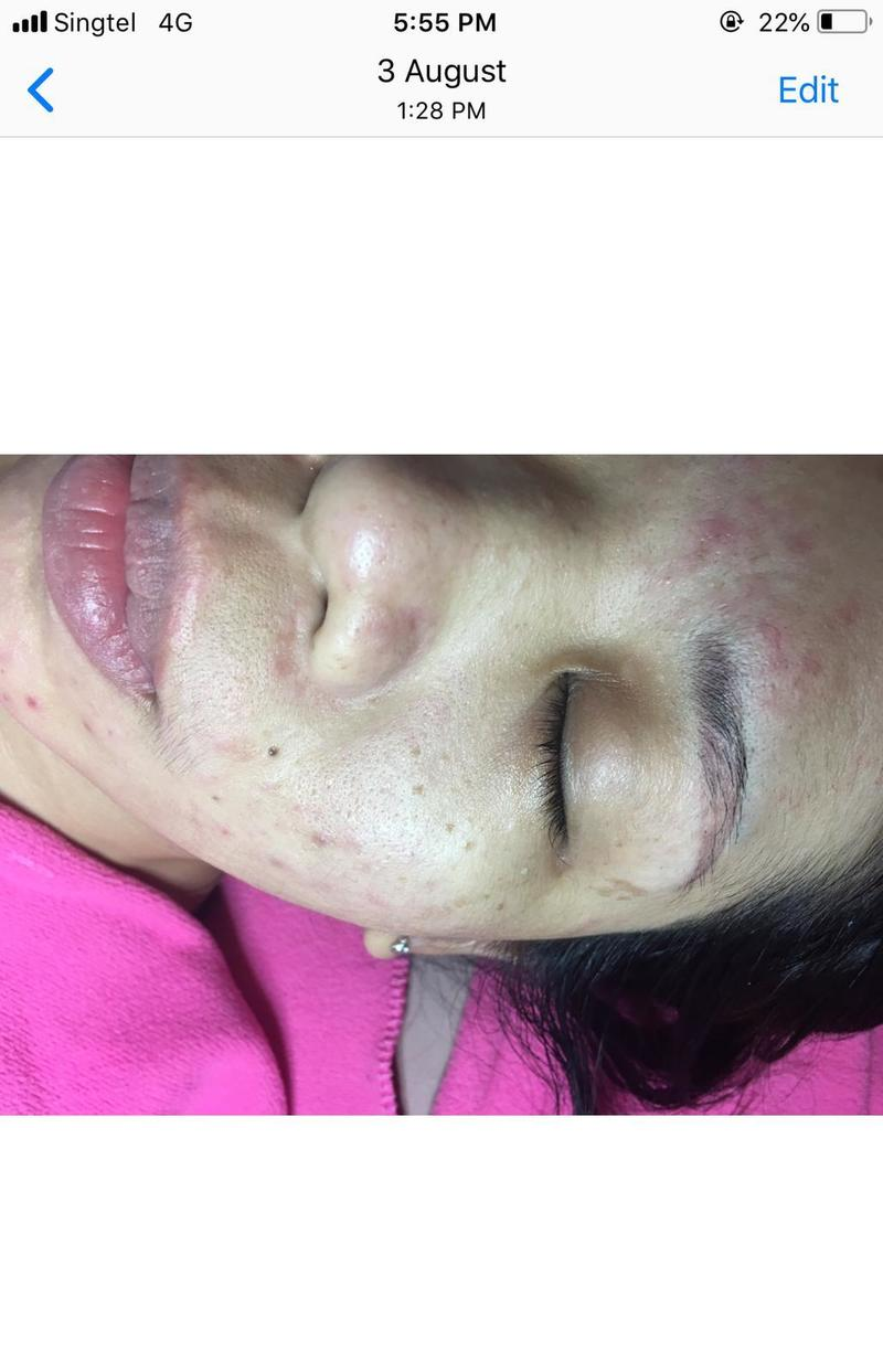 Less pimple after a few treatments at Apple Queen Beauty