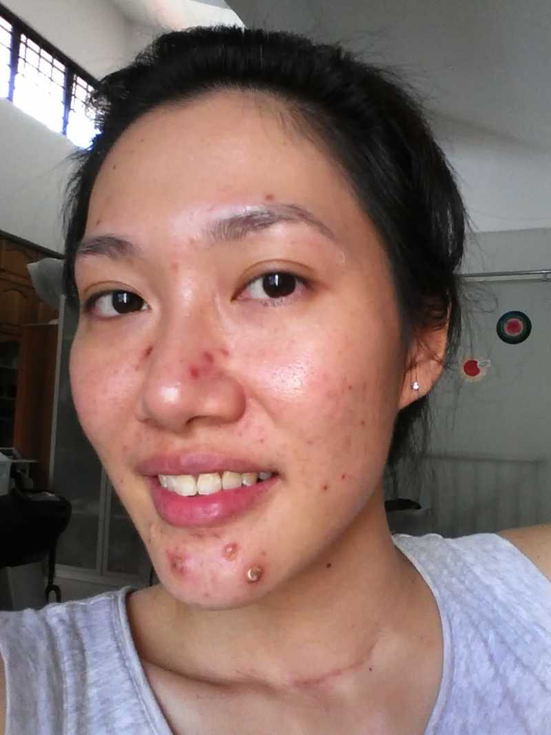 Pimple Face Before Chemical Peel at The Bund Beauty