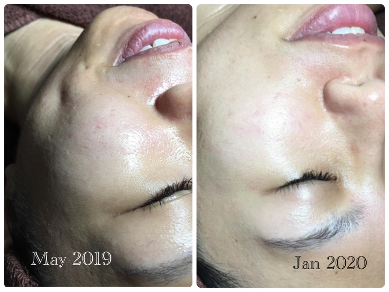 Before and After Microneedling Treatment at The Bund Beauty