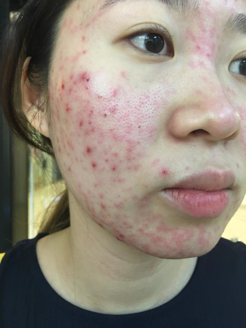 Severe Acne Before Treatment at Apple Queen Beauty
