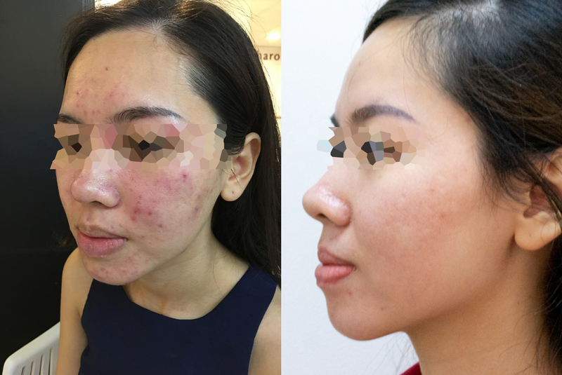 Before and After Vitamin B5 Facial at Apple Queen Beauty