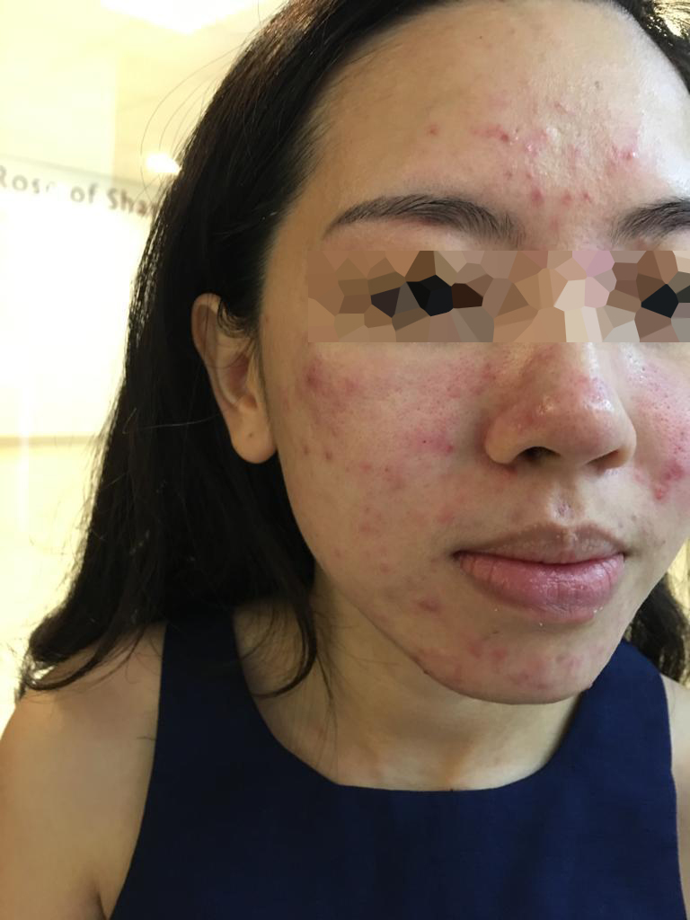 Severe Pimples Before Vitamin B5 Facial at Apple Queen Beauty