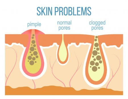 Illustration on Pimples and Clogged Pores