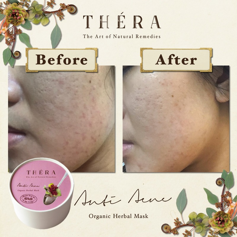 Before and After Thera Herbal Facial on Pimple Face at Organics Beauty