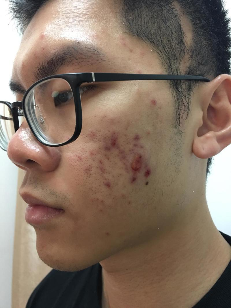 Man with Severe Cystic Acne