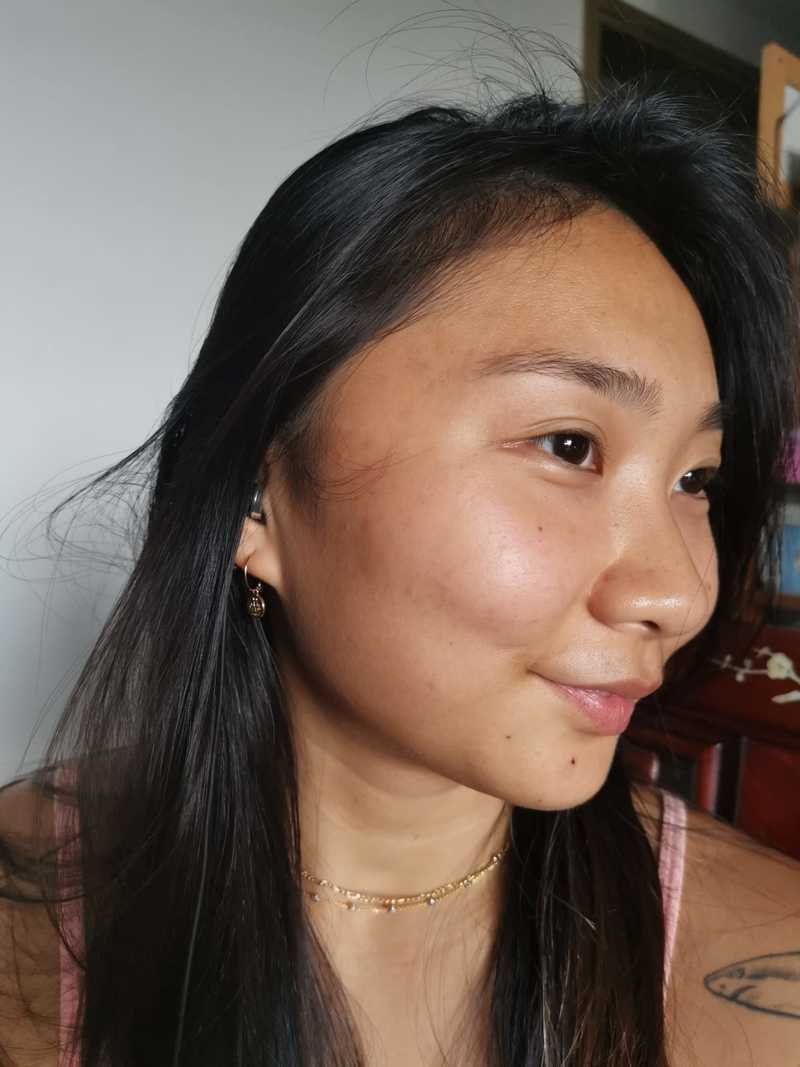 My Skin Two Months After Facial at Apple Queen Beauty