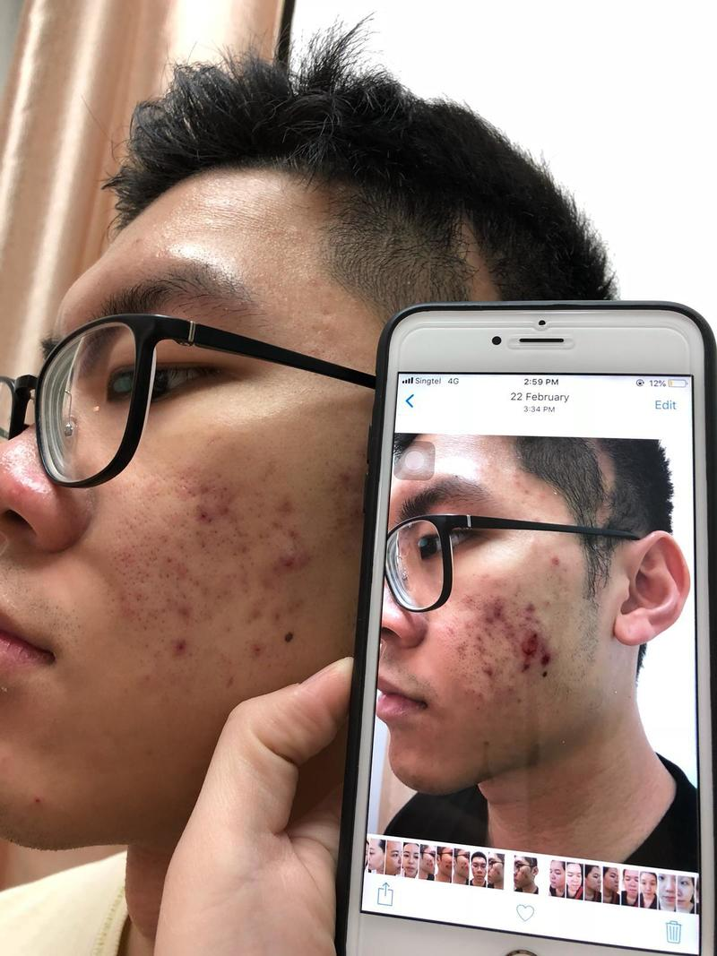 Before and After 4 Months of Facial Treatment For Cystic Acne at Apple Queen Beauty
