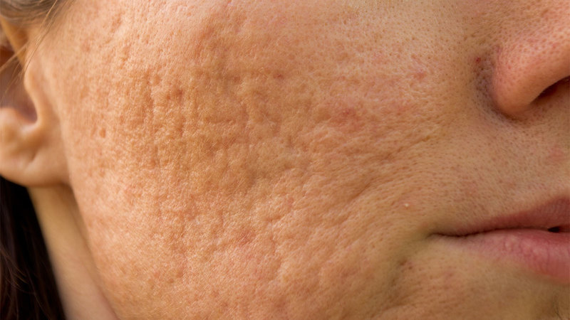Big and Visible Acne Scars