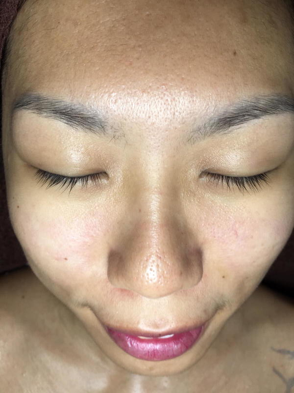 Uneven Skin Tone Before Light Chemical Peel