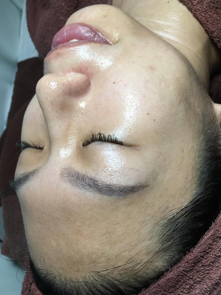 Bright and Even Complexion After 3 Months of Chemical Peel at The Bund Beauty