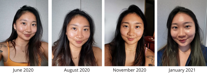 My Acne Skin Progress During Facial Treatment at Apple Queen Beauty
