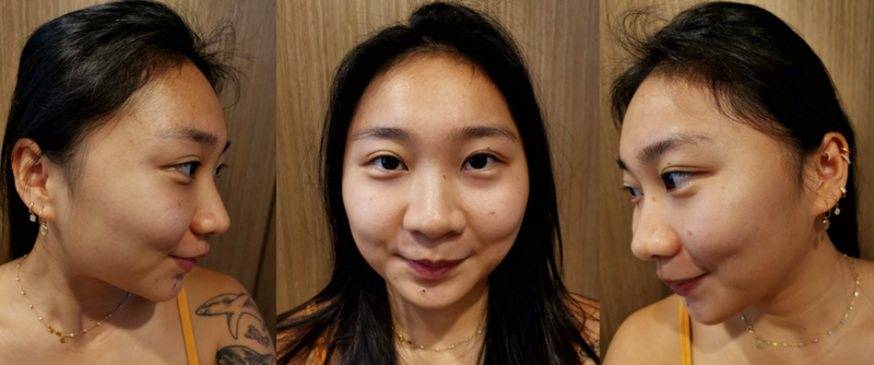 Days After 24K Gold Facial at Apple Queen Beauty