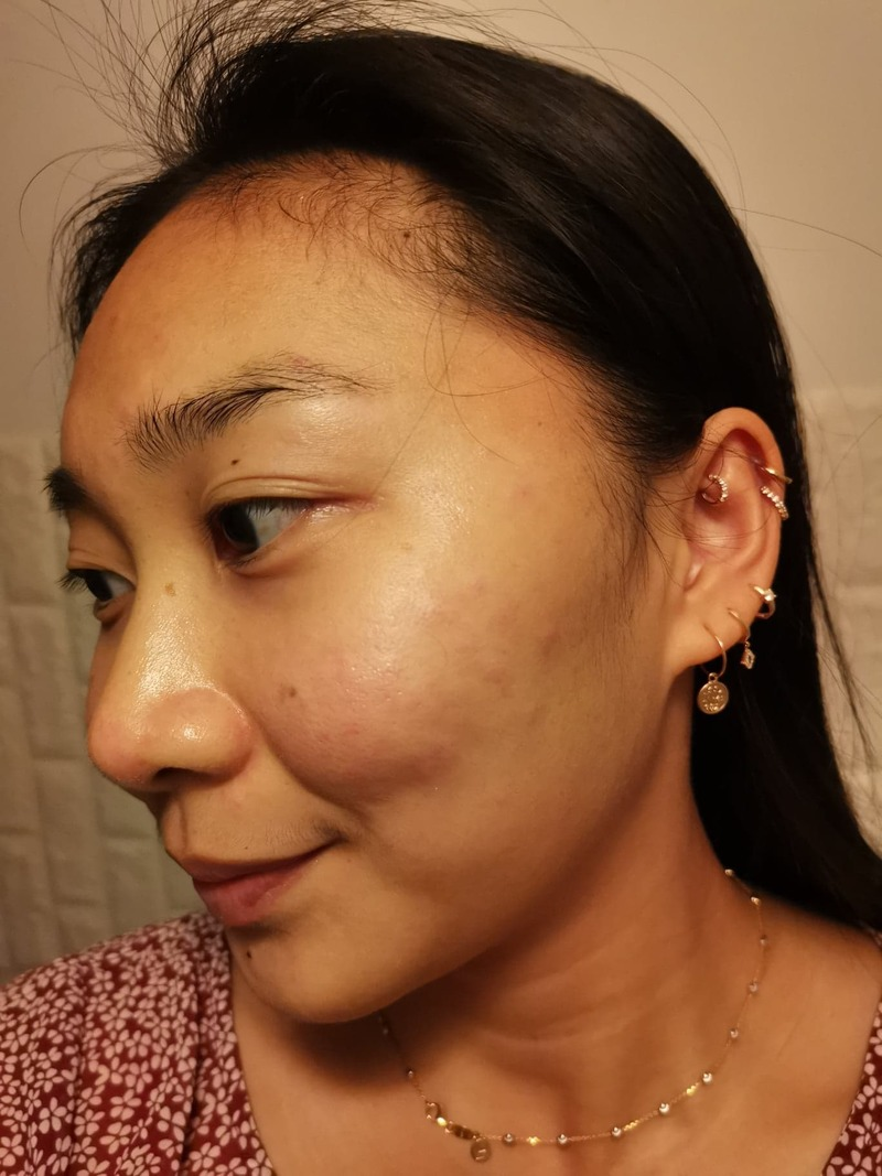 After Facial at Apple Queen Beauty