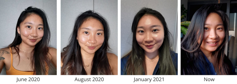 Acne Improvement After Facial at Apple Queen Beauty