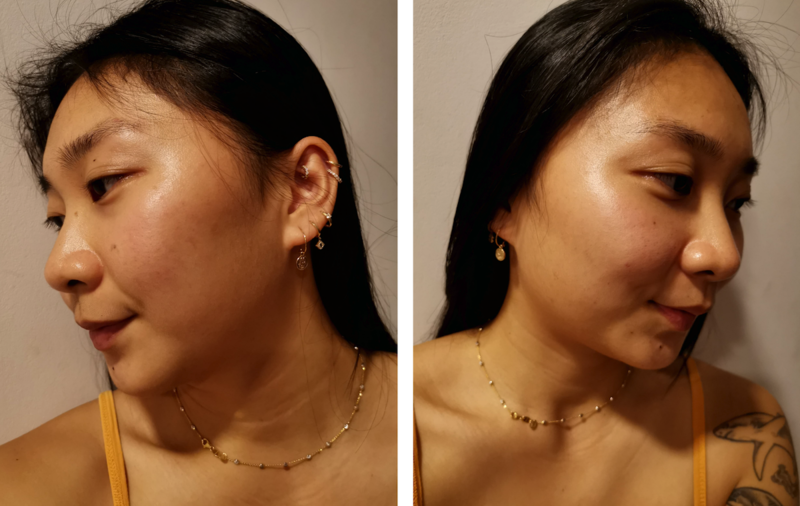 Improved Acne After Facial at Apple Queen Beauty