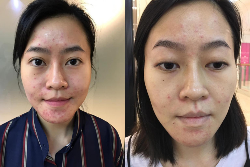 Before and After Pregnancy Acne Facial Treatment at Apple Queen Beauty