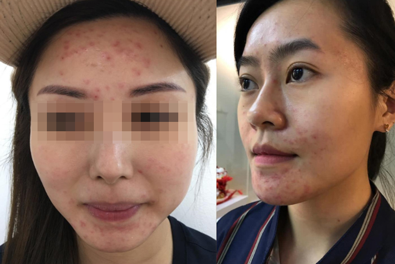 Pregnancy Acne Before and After Treatment at Apple Queen Beauty