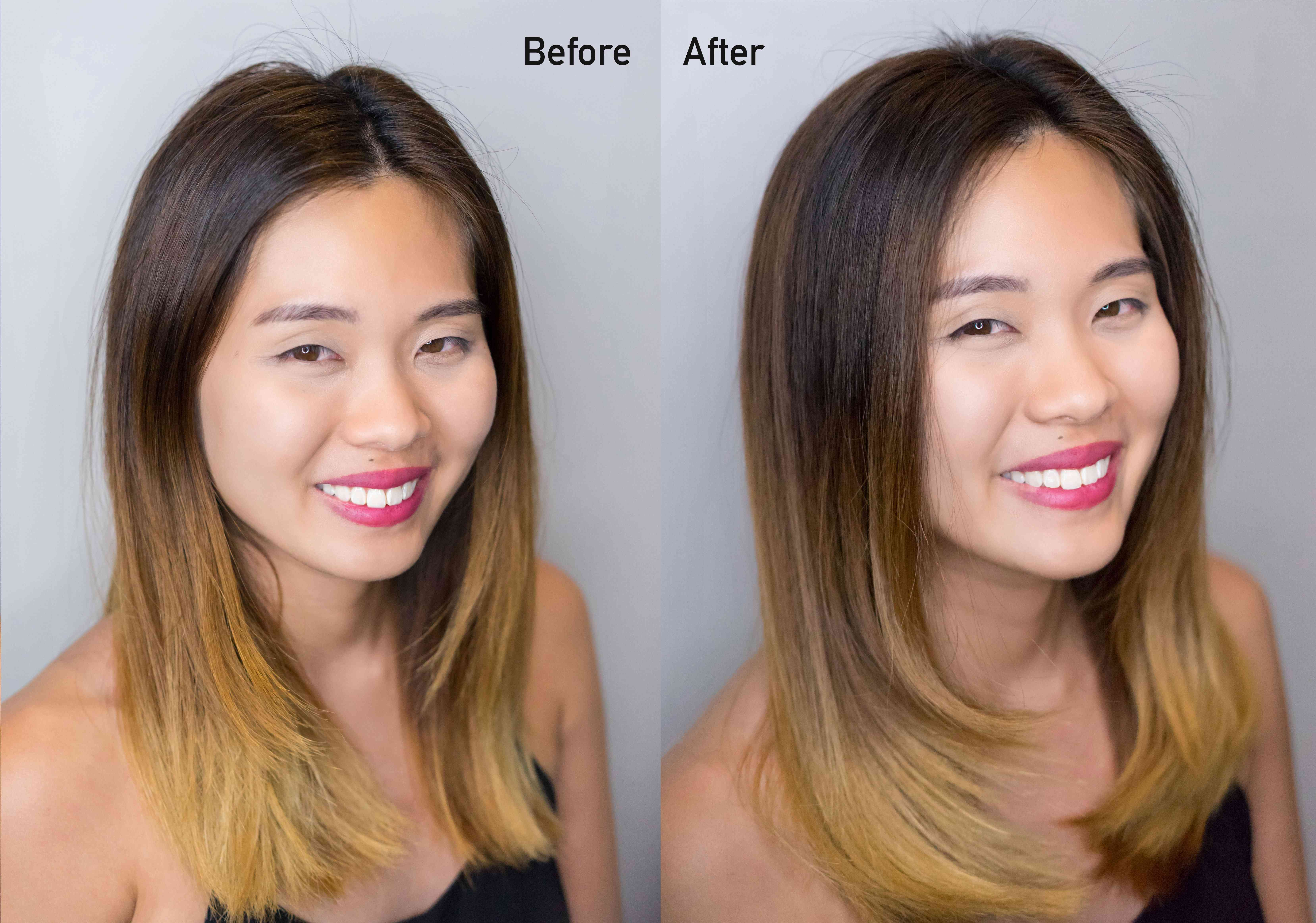 Rebecca Treatment Before and After