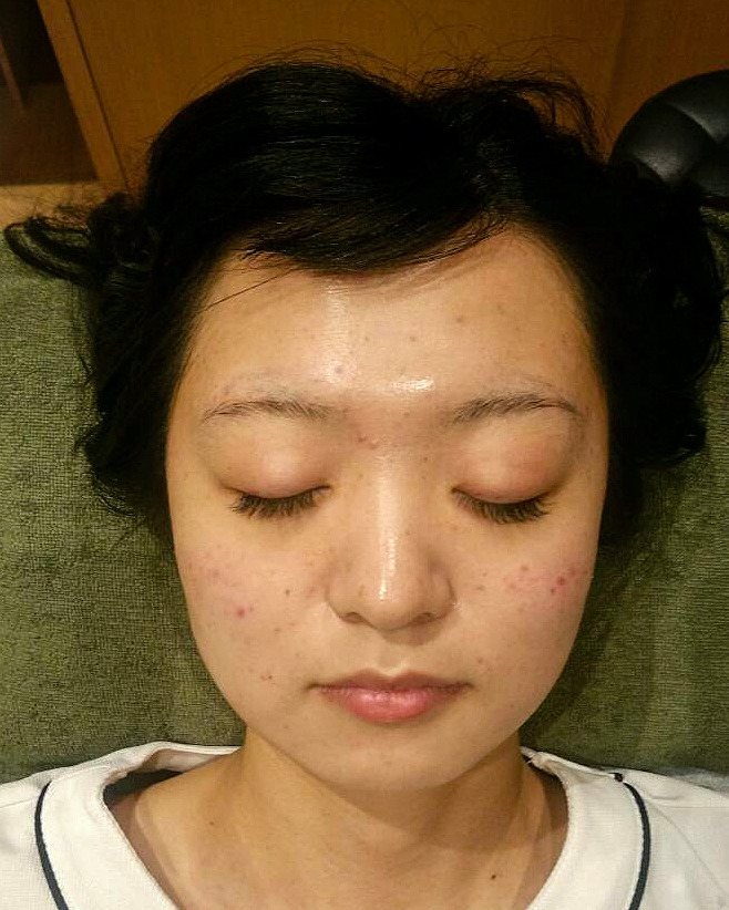 1 week after the aftercare facial